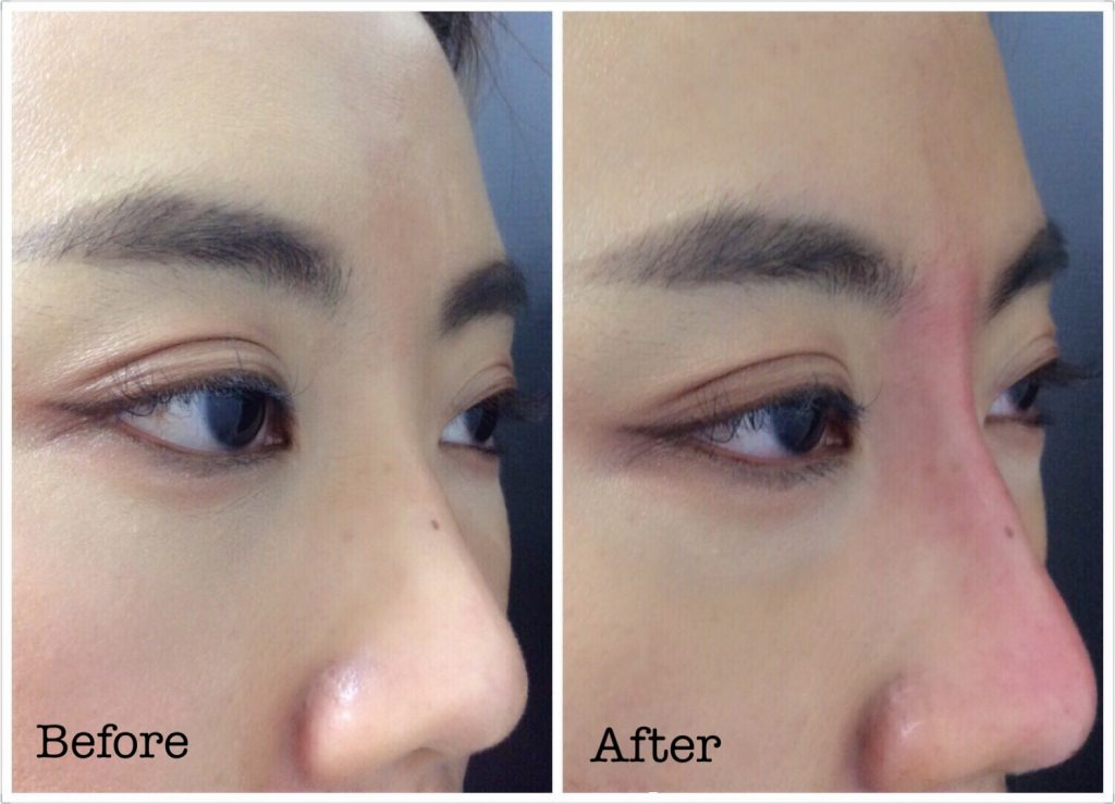 My 30-minute Lunch Time Facelift! [Hiko Nose Threads +